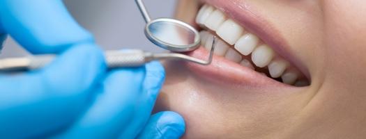 Zähne zeigen beim Zahnarzt_849x566 | Mühlenhoff