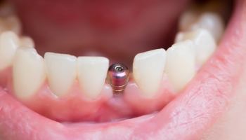Implantat_849x566 | Mühlenhoff
